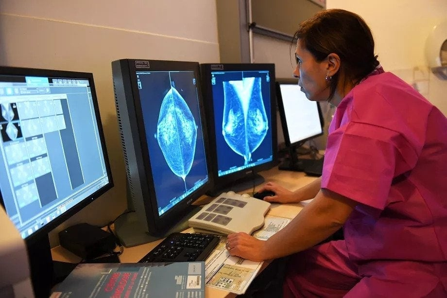 Google AI to study breast cancer